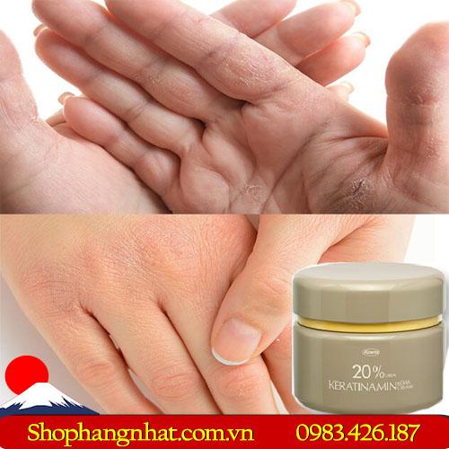 Giúp da được phục hồi và tái tạo nhanh chóng hơn